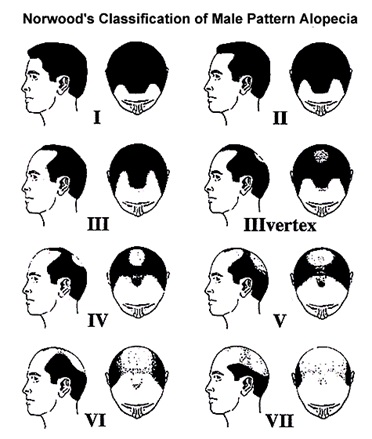 Hair Loss - Norwood Chart