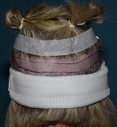 hair loss strip